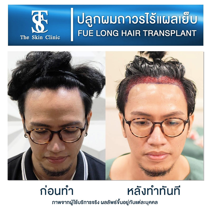Long Hair FUE review1