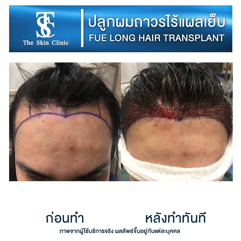 Long Hair FUE review2